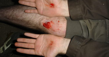 how long does road rash take to heal